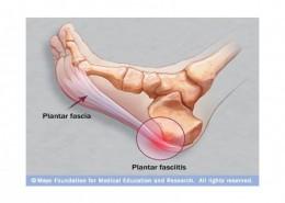 Plantar-Fasciitis-1-1030x796