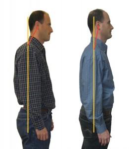 وضعیت درست نگه داشتن گردن-قوس نامناسب گردن به علت بد نگه داشتن آن