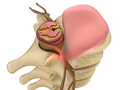 bigstock-Prolapse-of-intervertebral-dis-54076081