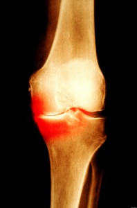 Osteoarthritic knee joint.