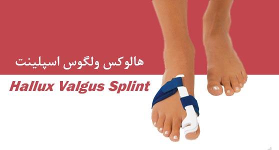 هالوکس ولگوس اسپلینتHallux Valgus Splint  اسپلینت های روزانه و شبانه هالوکس والگوس برای افرادیکه انحراف انگشت شست پا دارند جهت جلوگیری از پیشرفت و بهبود، و همچنین کاهش درد و التهاب بر روی مفصل متاتارسوفلنژیال اول تجویز می شود.  مشخصات : اسپلینت روزانه هالوکس والگوس کم حجم و سبک بوده و تداخلی با راه رفتن و پوشیدن کفش بیماران ندارد. همچنین از متریال مناسب استفاده شده تا حساسیت برای پوست نداشته باشد و به بهبود دفورمیتی و جلوگیری از پیشرفت آن کمک نماید. اسپلینت شبانه نیز برای راحتی و مطابق با شرایط آناتومیک بیمار طراحی و ساخته می شود. اندیکاسیون: هالوکس والگوس