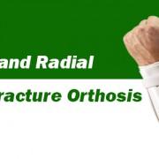 اُرتزهای شکستگیFracture Orthosis  Ulnar and Radial Fracture Orthosis مشخصات : ارتوزهای شکستگی استخوانهای النا و رادیوس با ایجاد ثبات در این استخوانها باعث افزایش کمپرشن بافت نرم و تحریک استخوانسازی می شود. این ارتوزها به روند بهبود بیماران کمک می نمایند. اندیکاسیون:  شکستگی النا شکستگی رادیوس
